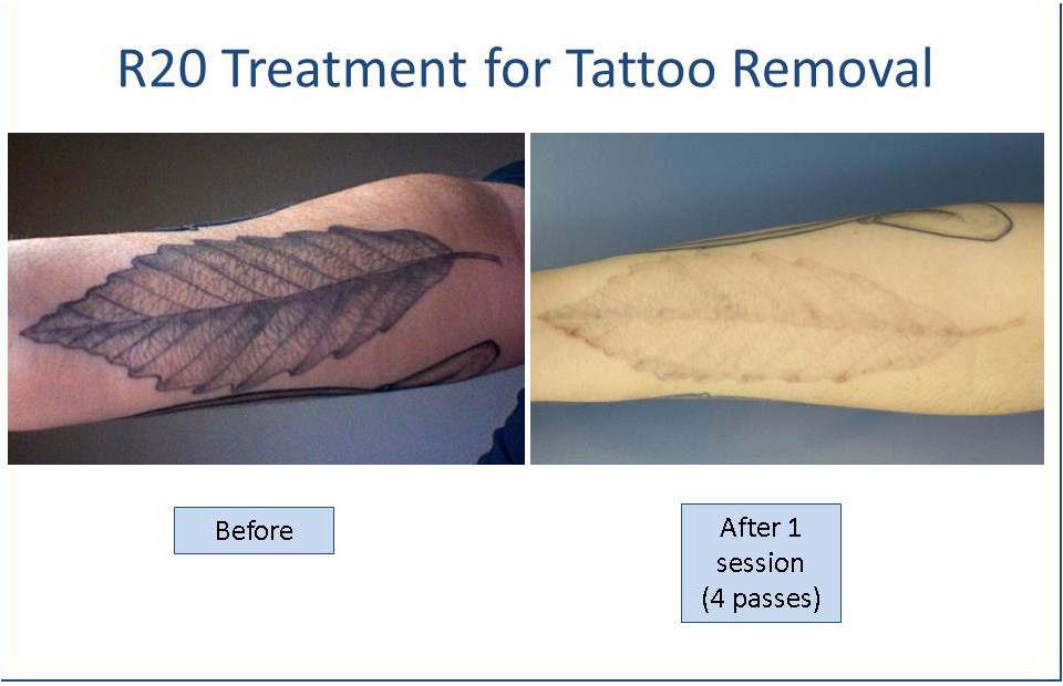 R-20 laser tattoo removal before and after