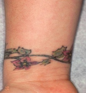 Tattoo removal before 2 278x300 Tattoo removal before 2