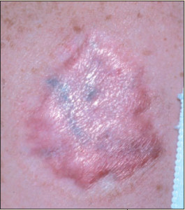 scar after a tattoo removal 265x300 6 Bad Tattoo Removal Locations