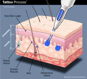 what is tattoo removal 300x273 Sexy tattoo girl
