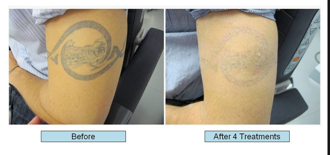 More about r20 tattoo removal tattoo removal how to 39 s for How much to get a tattoo removed