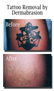 Fading out tattoo methods 4 180x300 Fading out tattoo methods 4