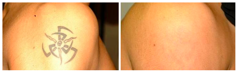 Laser Tattoo Removal 1 Henna Tattoo Removal Is Easier and Can Be Accomplished At Home